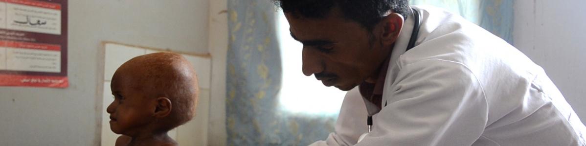 malnutrizione in yemen