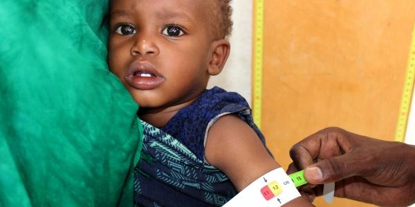 Bishaaro riceve un trattamento contro la malnutrizione in uno dei nostri centri,